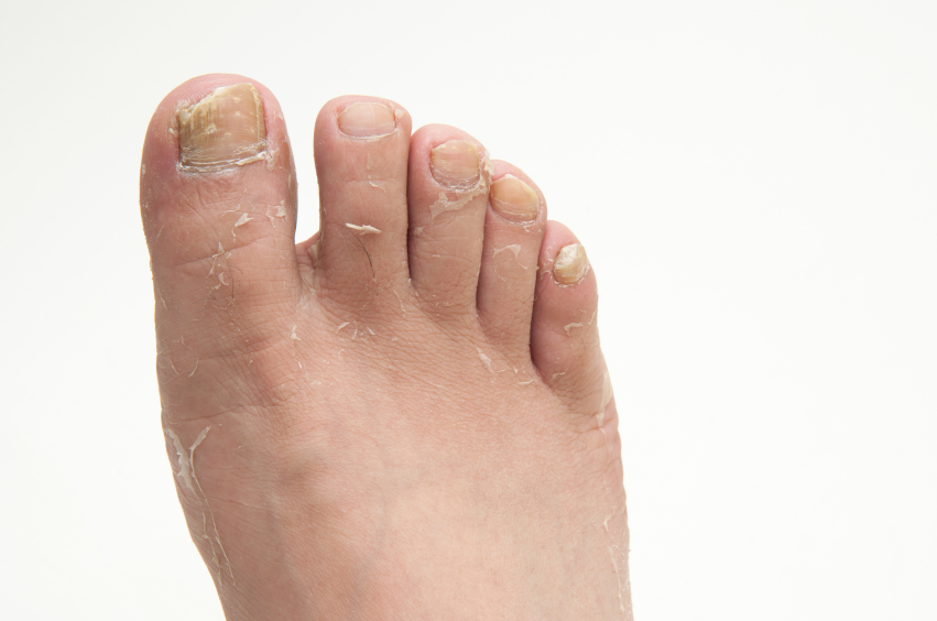 athletes foot in adolescent skin conditions