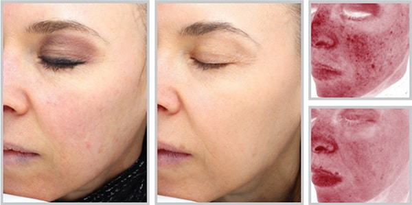 Halo Before and After photos with skin damage lessened