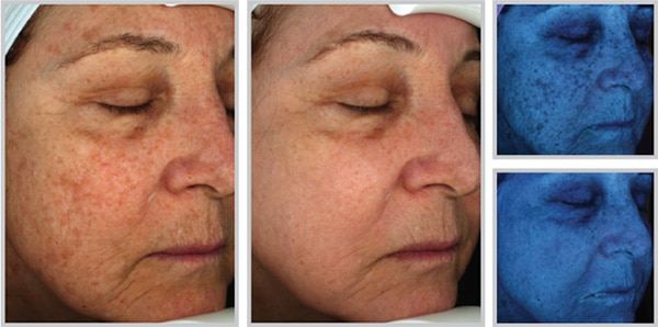Halo Before and After with Skin Damage Repaired