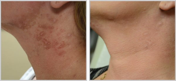 Before and After Photo Halo Laser