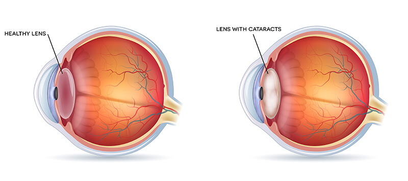 Chart showing a healthy eye compared to one with a cataract