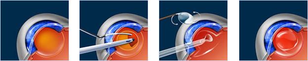Cataract Surgery Steps Illustrations