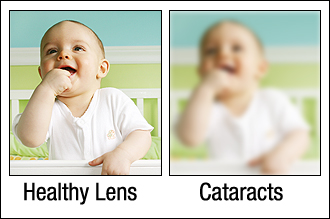 Example of Vision Through A Cataract