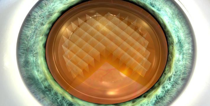 Lens Segmentation