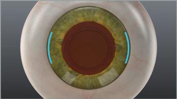 Limbal Relaxing Incisions