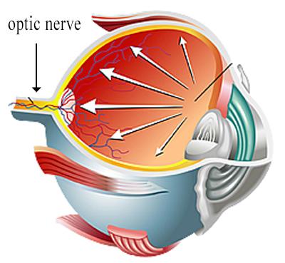 Glaucoma Pressure Illustration