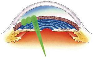 Trabeculoplasty Diagram