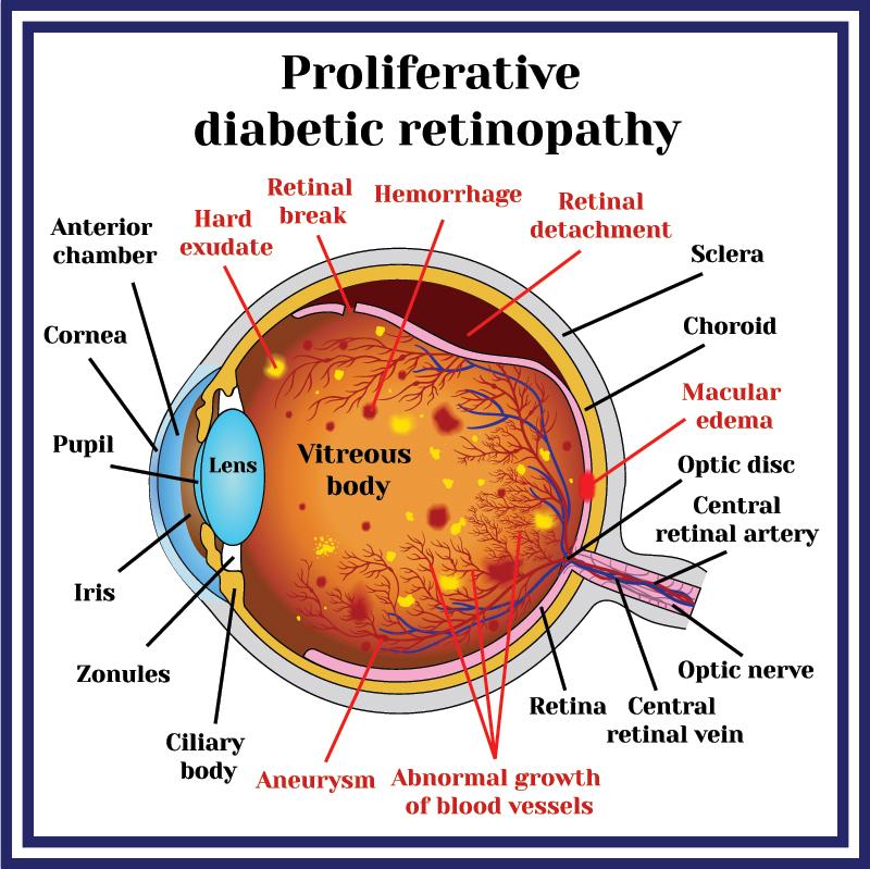 Medical Illustration of Proliferative Diabetic Retinopathy