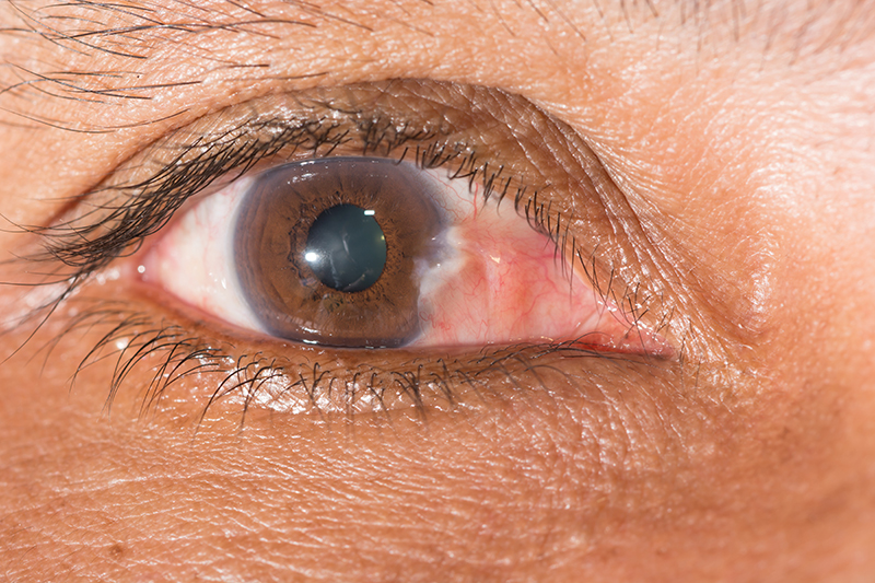 Close Up of Pterygium in Eye