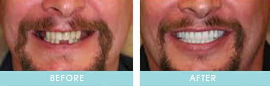 Before & After Dental Implants Transformation