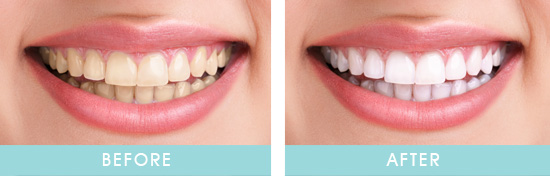 Before & After Zoom Teeth Whitening Transformation