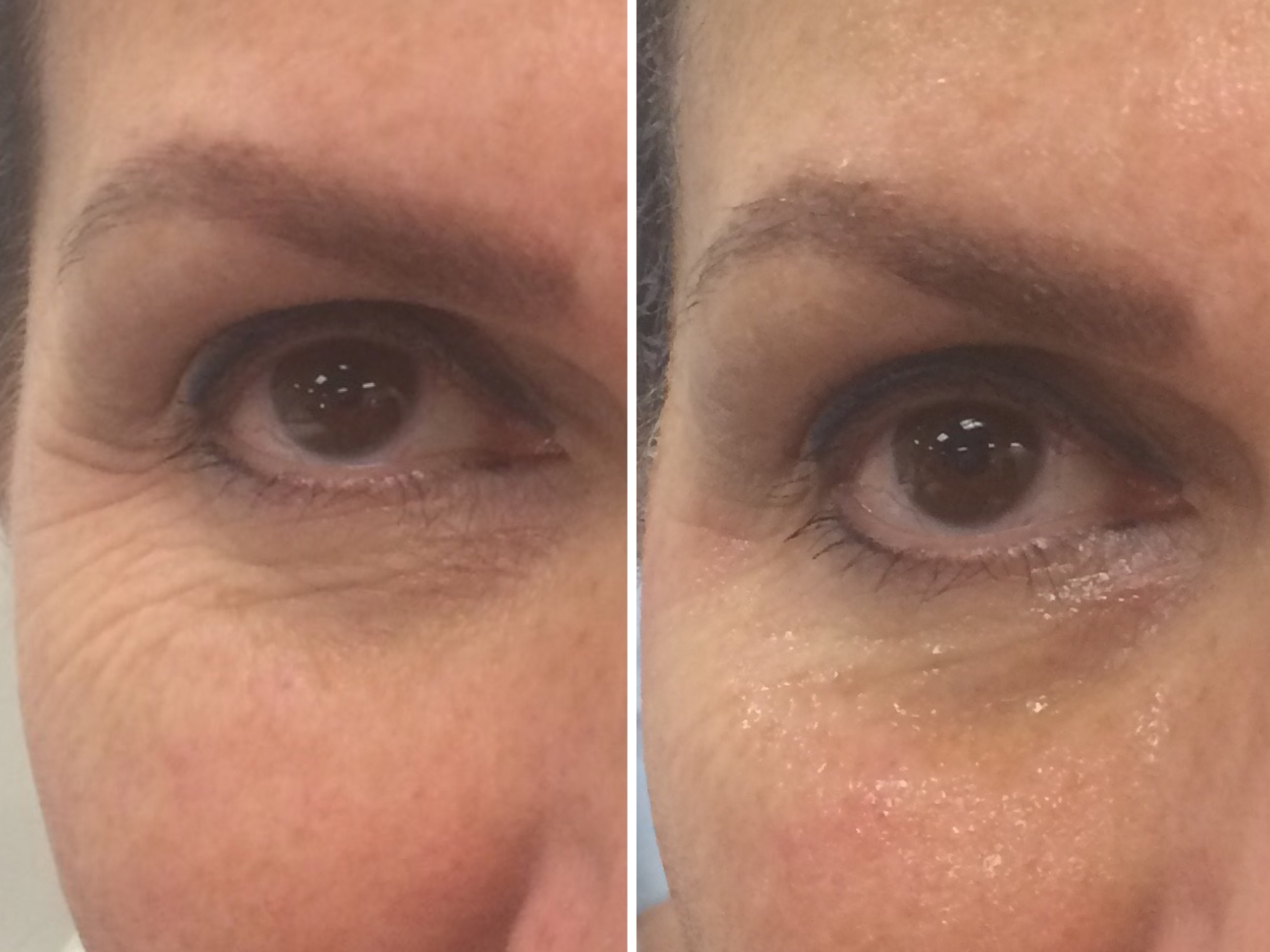 Skinn Fitness Coolifting Before and After