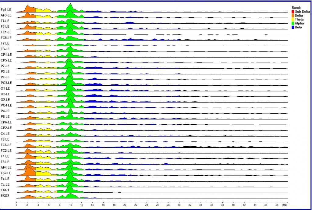 Thomas - delta peaks(orange) during activation