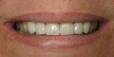 Cindy after dental veneers