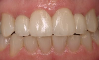 Beverly after dental crown