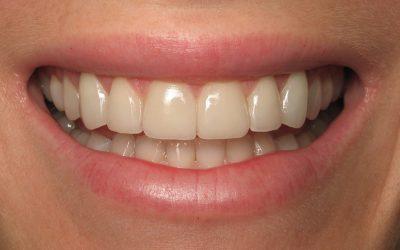 Carolyn's teeth after veneers
