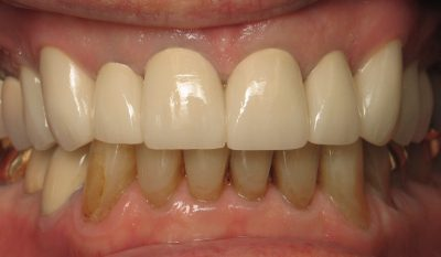 H. Lerner's teeth after full mouth reconstruction