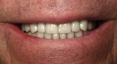 J. Lonetti's teeth after crowns