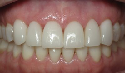 J. Stewart's teeth after full mouth reconstruction