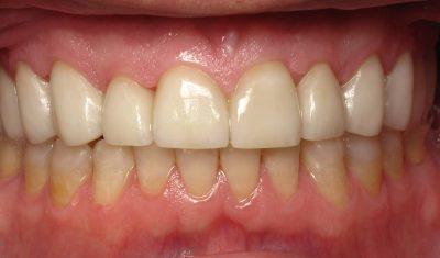Nancy's teeth after crowns