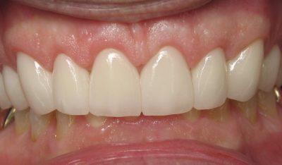 Jerry B's teeth after veneers