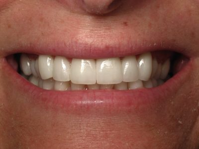 Marry's teeth after crowns
