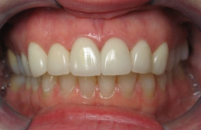 Ron's teeth after full mouth reconstruction