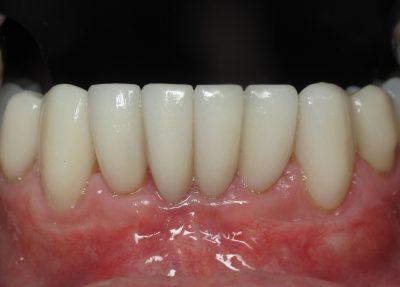 S. Ryan's teeth after crowns