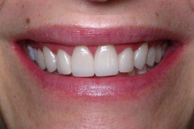 Tracy V's teeth after veneers