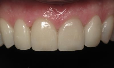Weston G's teeth after veneers