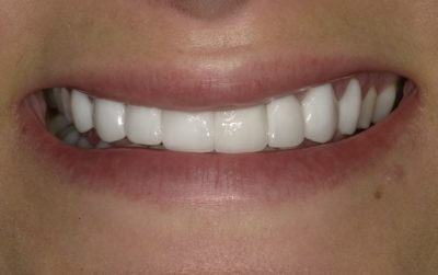 Teeth with veneers at Layton Dentistry