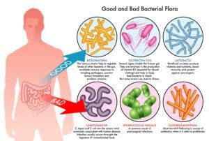 SIBO good and bad bacteria