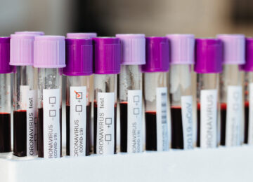 Closed flasks with positive and negative blood tests for Covid-19 in the laboratory