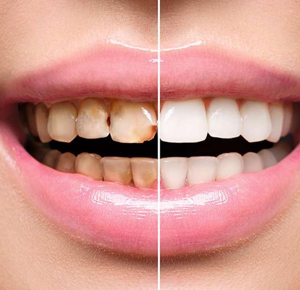 Dental Implant Restoration - image  on https://alwaysbeautifulsmile.com