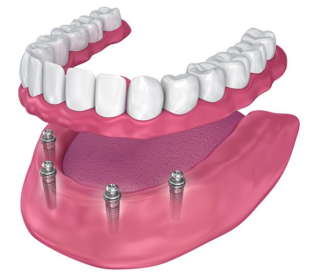 All-On-4 Implants - image  on https://alwaysbeautifulsmile.com