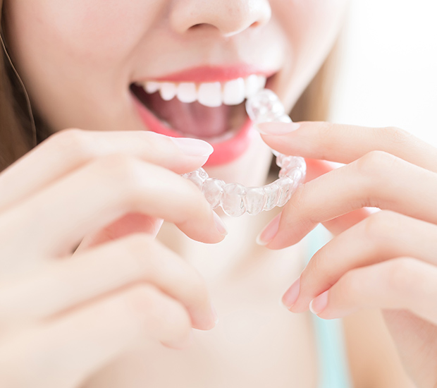 Alternative to Braces for Teens - image  on https://alwaysbeautifulsmile.com