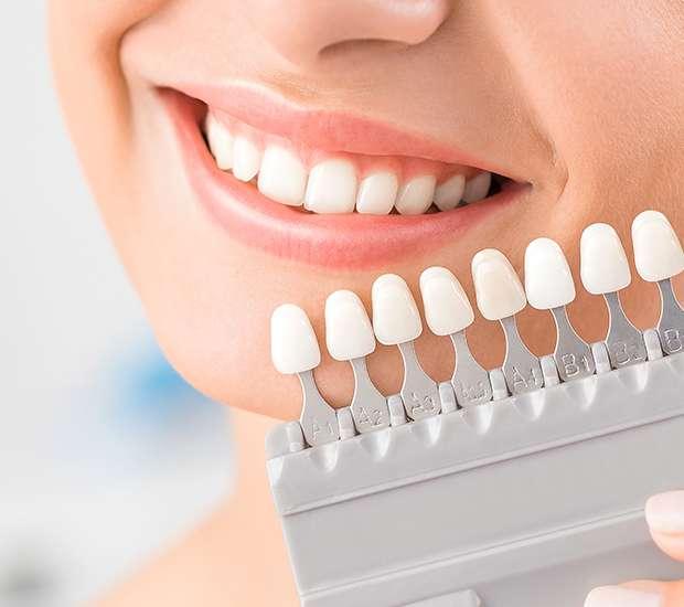 dental veneers and dental laminates