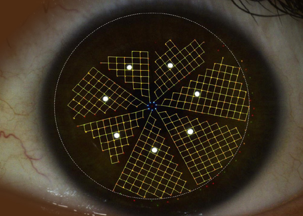 Image of an incomplete eye measurement of an unstable tear film