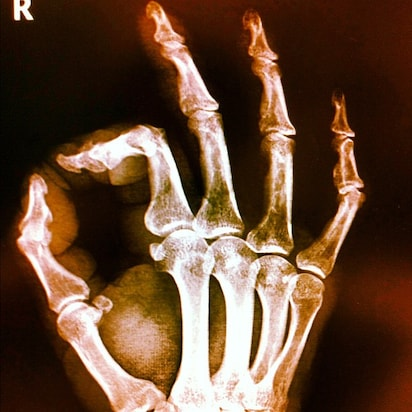 joint x-ray