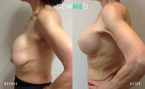 Breast Reconstruction