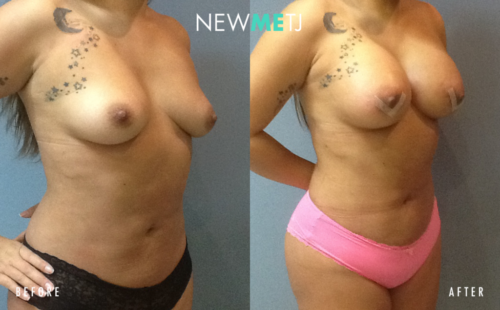 Breast Surgery1