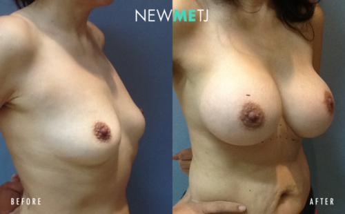 Breast Surgery2