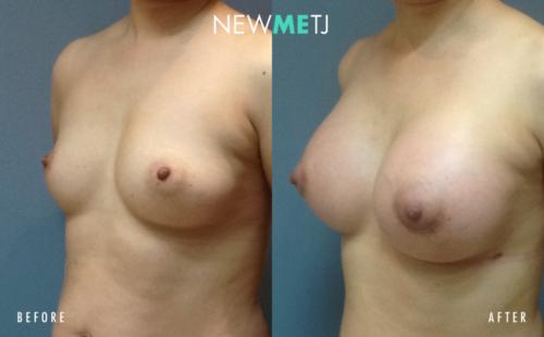 Breast Surgery4