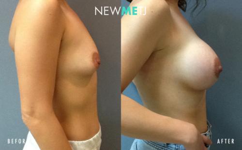 Breast Surgery5