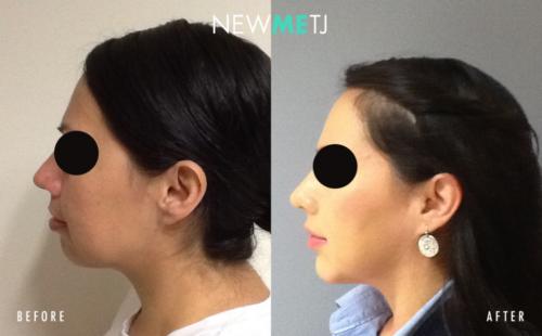 Chin Implant2