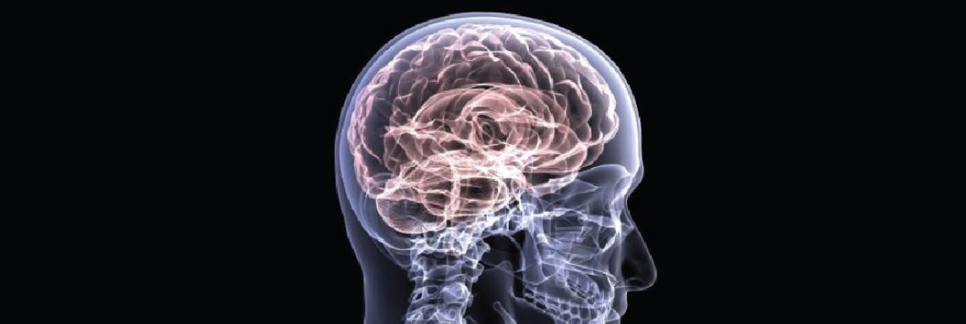 brain injury personal injury law fargo nd
