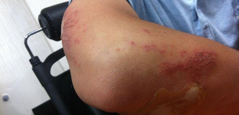 injured arm personal injury fargo