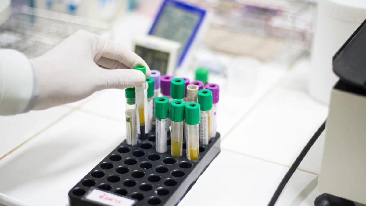 Medical Testing Image