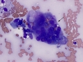 Sarcoma with giant cells (cat)