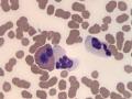 Neutrophils & eosinophil